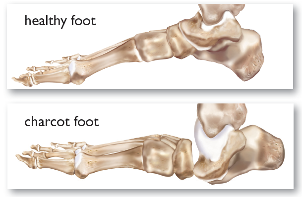 Charcot Foot Country Foot Care Long Island
