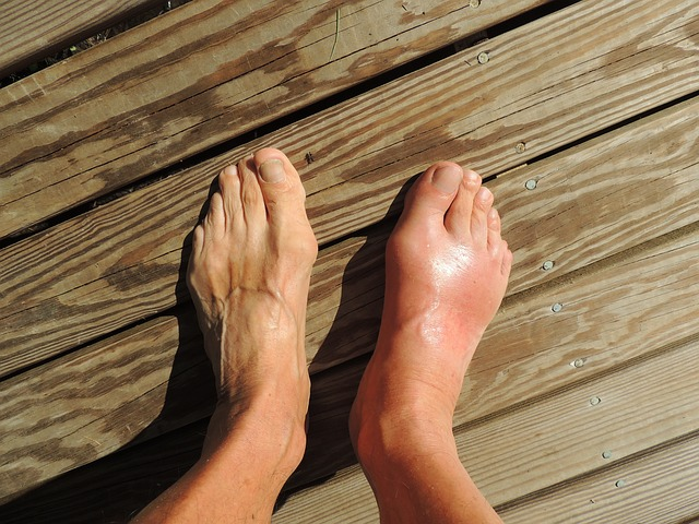 Control Gout During the Holidays