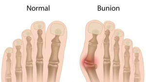 normal vs bunion toe