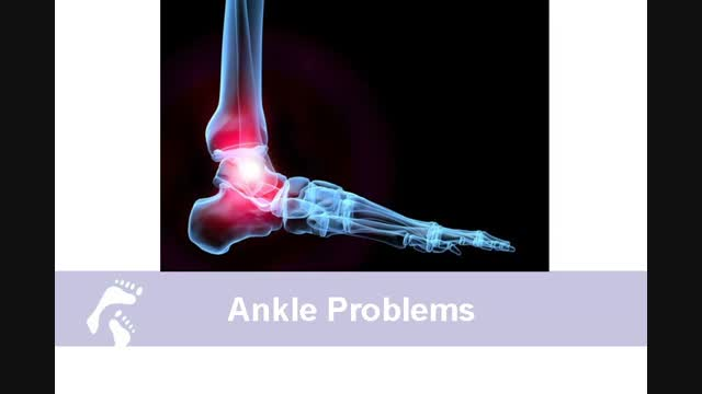 Common Foot and Ankle Injuries;What Country Foot Care Doctors Say about Ankle Pain