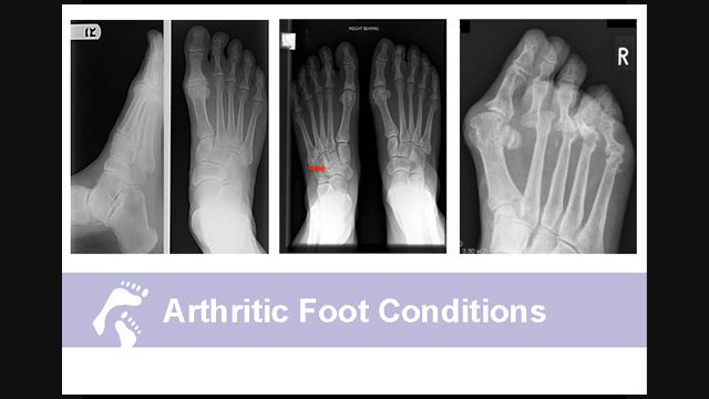 What are Arthritic Foot Conditions;What Country Foot Care Doctors say about Arthritis