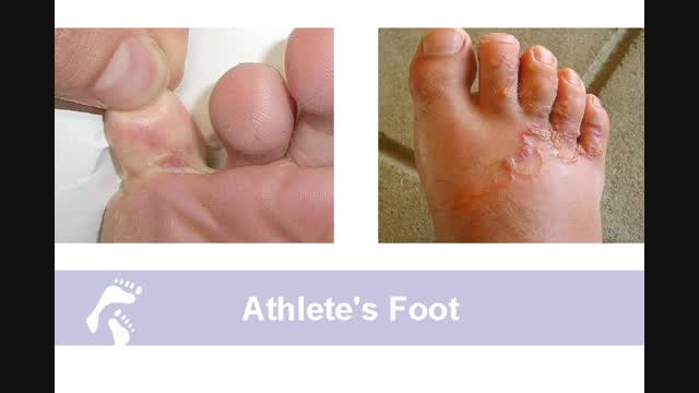 Fungal Nails And Athlete S Foot Country Foot Care