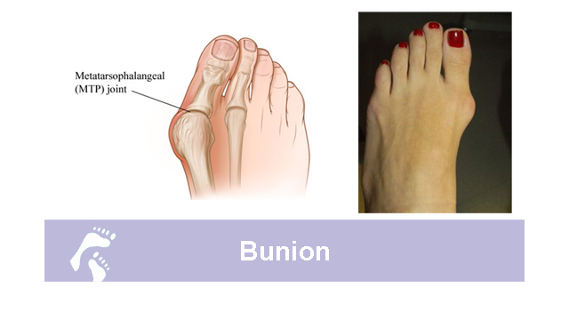 What is a Bunion;How Country Foot Care doctors treat bunions