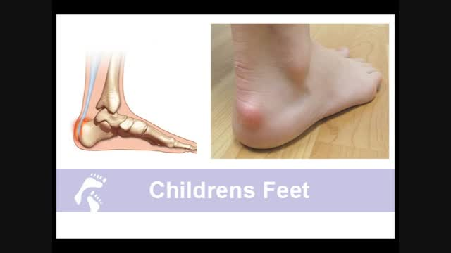 Proper Shoes For Children's Feet;The Importance of Evaluating<br /> Your Child's Feet