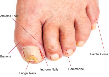 Common Foot and Ankle Conditions