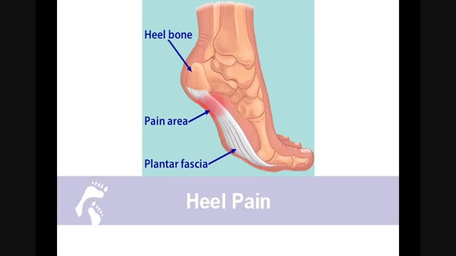 Where does heel pain come from?;What our doctors say about heel pain & plantar fasciitis?