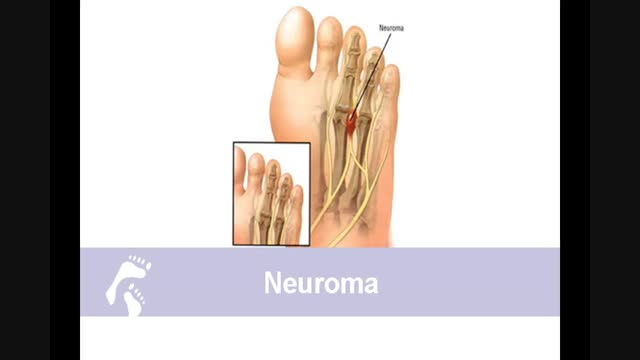 What causes Nerve Pain and Numbness;What our doctors say about neuroma and nerve pain