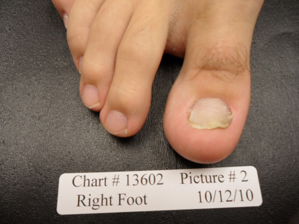 Fungal Nail after