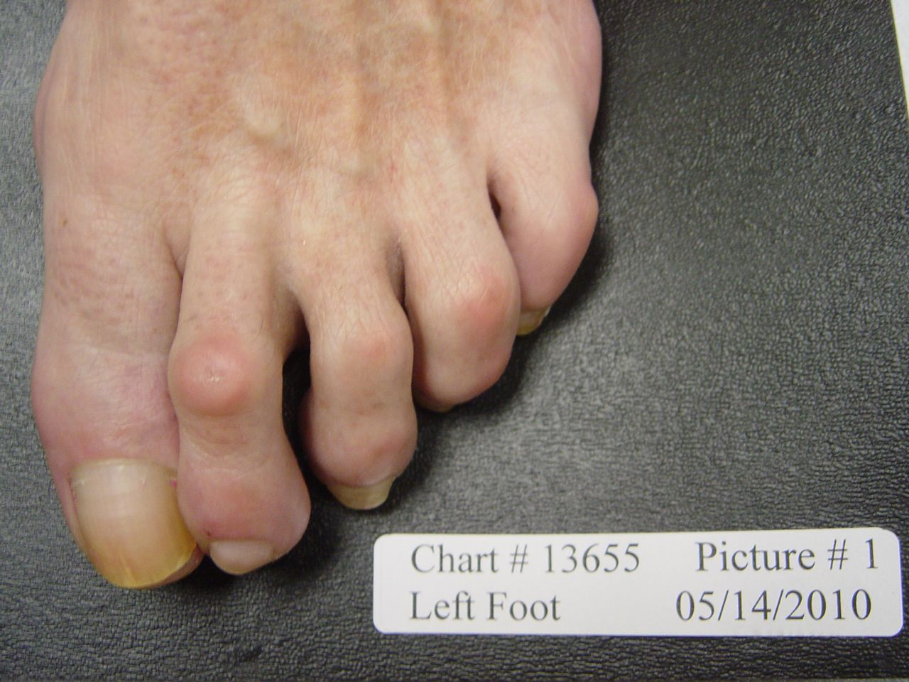 fungal nail before