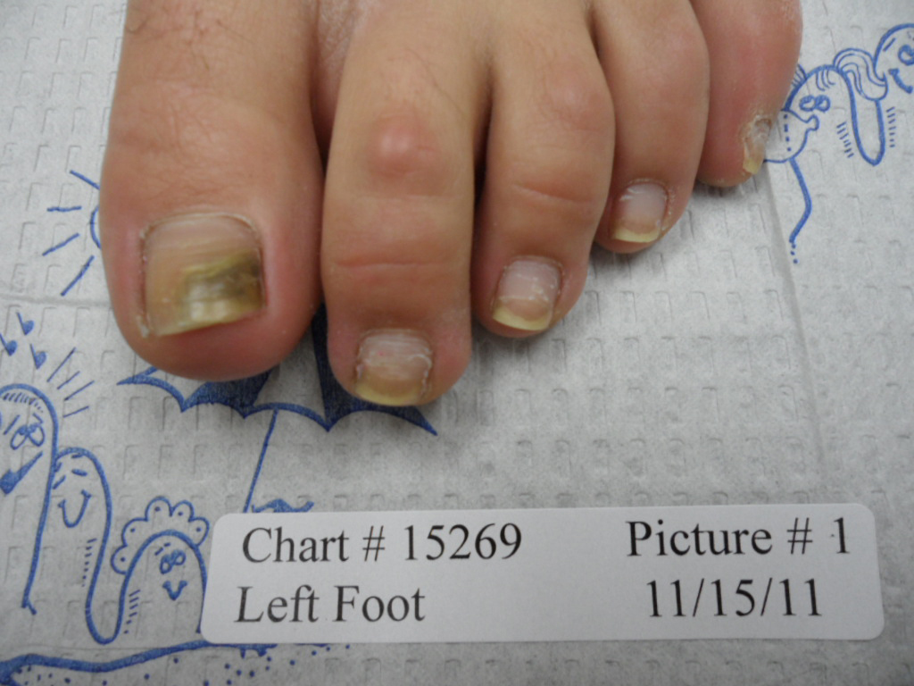 fungal nail before laser treatment