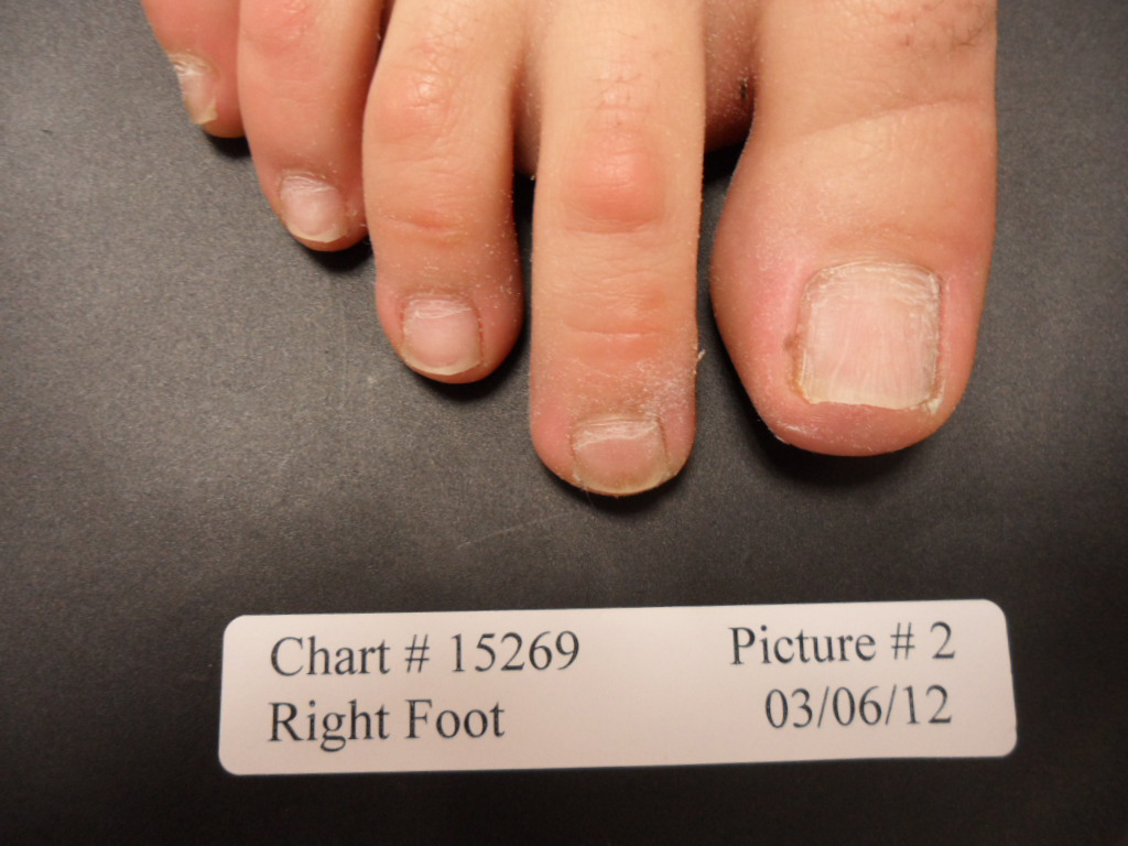 fungal nail after laser treatment