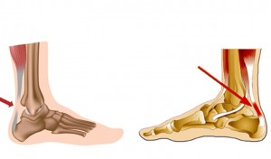 diagram showing achillies tendon problems