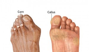 foot corn and callus