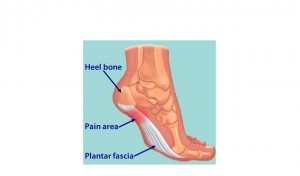 heel pain diagram