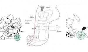 foot diagram showing Lisfranc Injury