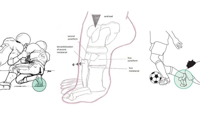 Lisfranc Ligament Anatomy