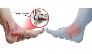 diagram showing tarsal tunnel syndrome