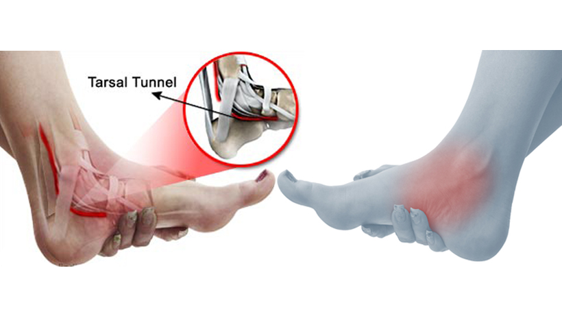 Tarsal Tunnel Syndrome Country Foot Care