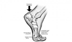 diagram showing turf toe