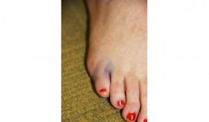 bruised toe