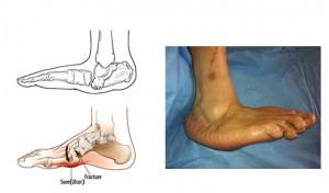 Carcot foot
