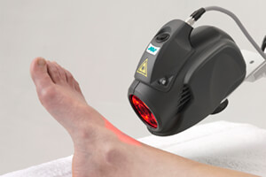 MLS® Laser Treatment | Laser Foot Treatment
